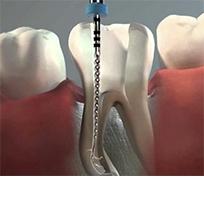 Endodonzia Clinica