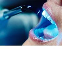 Odontoiatria Estetica e Sbiancamento professionale